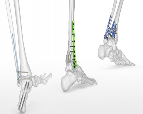 LOCKING PLATES AND ITS REMARKABLE SIGNIFICANCE IN THE SEGMENT OF ORTHOPAEDIC IMPLANTS